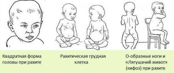 Как понять что у ребенка рахит фото