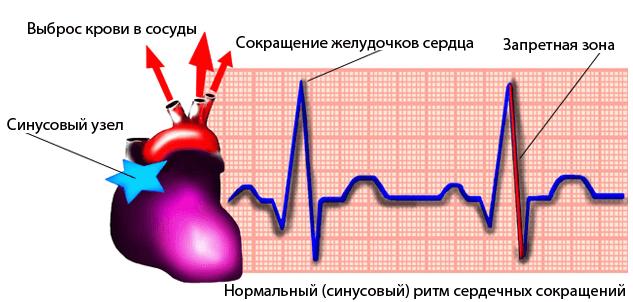 Синусовая дыхательная аритмия у детей