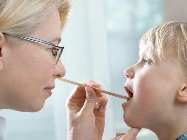 Белые точки на миндалинах: срочно к врачу