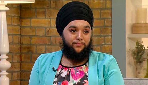 В Великобритании живёт самая молодая девушка с бородой