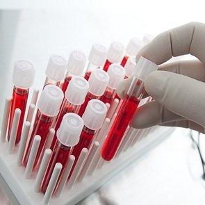 Эозинофилы в крови у ребёнка