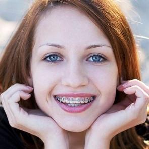 Брекеты, прыщи, очки: как научить ребёнка принимать свою внешность