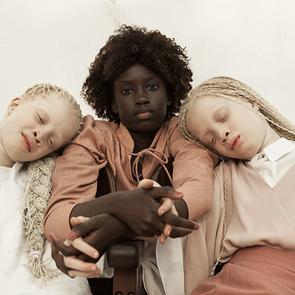 Бразильские близнецы-альбиносы покорили Интернет