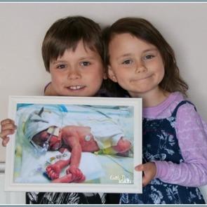 Необыкновенные фото детей, родившихся раньше срока