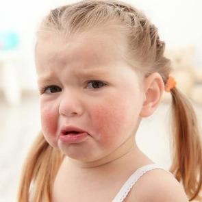 10 мифов об аллергии, в которые верят все мамы
