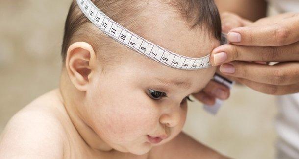 Виды водянки у новорождённого
