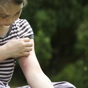 Как защитить ребёнка от комаров (и что делать, если его покусали)