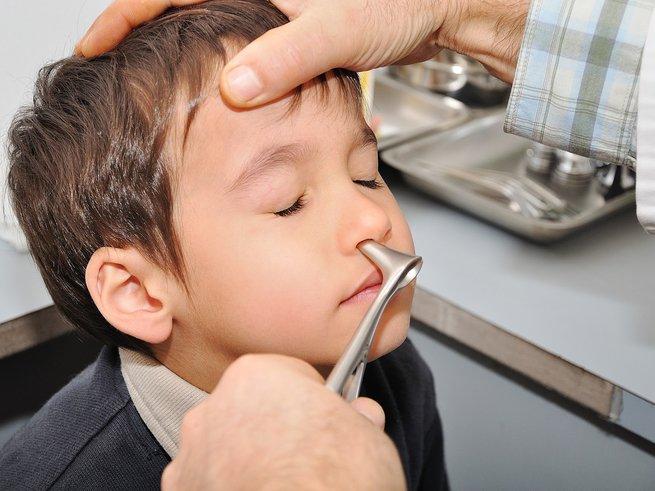 Инородный предмет в носу у ребенка