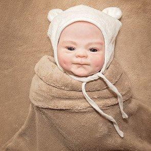 Виды водянки у новорождённых